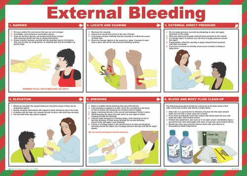 External Bleeding safety poster