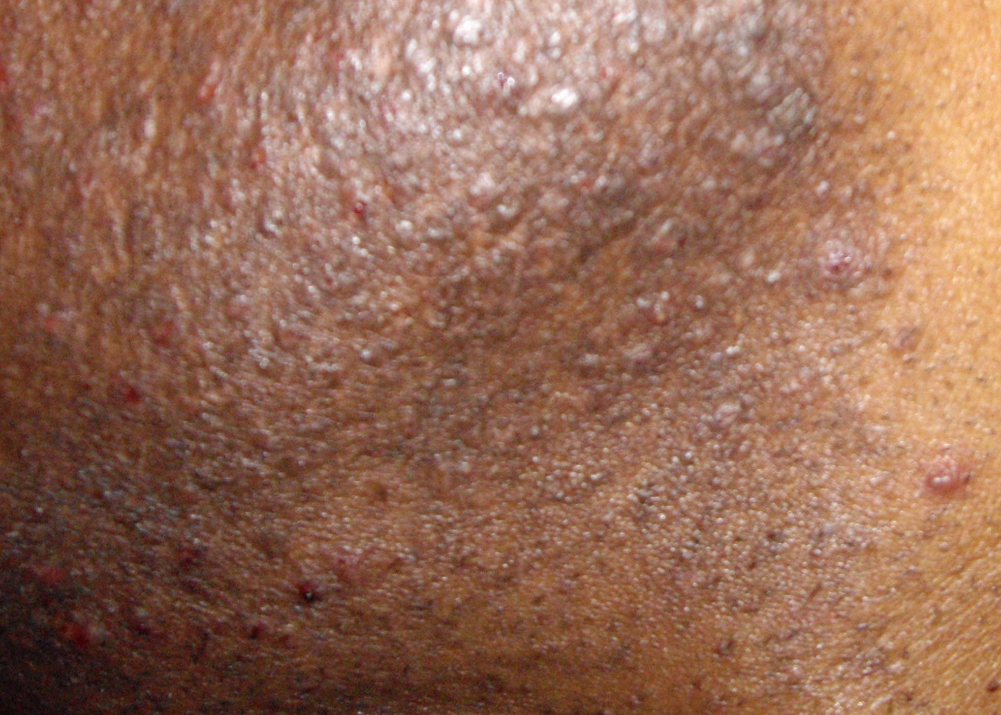 how to get rid of underarm razor bumps