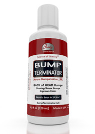 "Our latest product is the Advanced and Fast Acting BUMP TERMINATOR for men dealing with the difficult to treat ""Back of Head"" Bumps, Bumps on the Head as well as Facial Bumps and Ingrown Hairs. Use on existing bumps and use after getting a hair cut or shaving to prevent the development on new bumps or ingrown hairs  Facial Bumps Shaved Head Bumps] Back of the Head Bumps Bump Due to Entrapped Hairs [Ingrown Hairs"