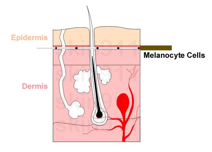 Brown Spots on Skin, Epidermis Melanocyte Cells