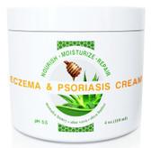 Eczema & Psoriasis Cream with Manuka Honey, Aloe Vera, Shea Butter, Coconut Oil, Hemp Seed Oil, Wild Naturals 4 oz, UK