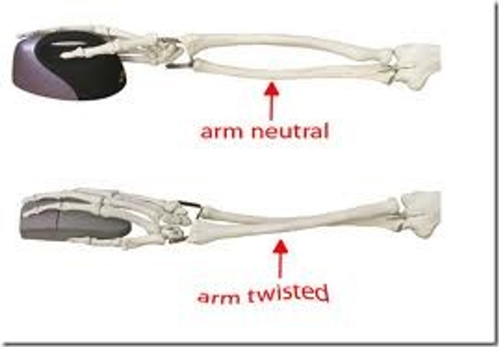 Forearm bones with vertical and flat mice