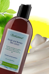 Rough and Bumpy Skin  Lotion