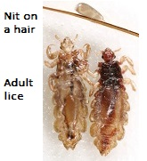 head lice ~ in case you were wondering (q&a) - lice treatment center®, Skeleton