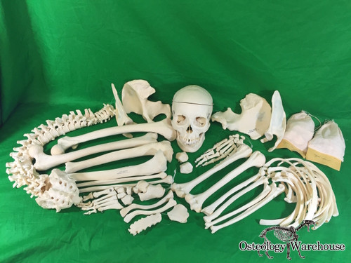 Osteology Warehouse | Vintage Clay Adams Skeleton Product URL: www.osteologywarehouse.com/real-skeletons/vintage-clay-adams-skeleton
