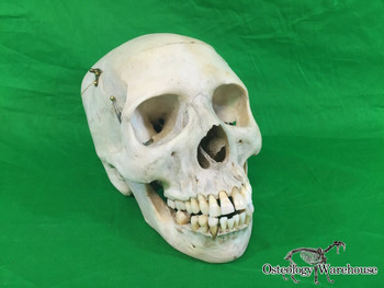 Product URL: www.osteologywarehouse.com/real-human-skulls/real-human-skull-g Osteology Warehouse | Real human skull G