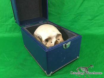 Osteology Warehouse | Calvarium Cut Articulated with Case Product URL: www.osteologywarehouse.com/real-human-skulls/calvarium-cut-articulated-with-case