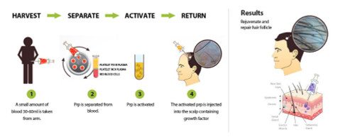 Facial Rejuvenation with PRF