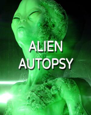 Alien Autopsy Escape Room I
