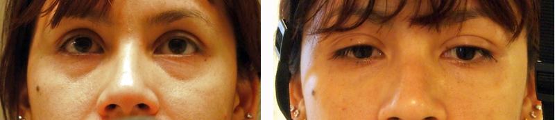 eye creams for puffy eyes and dark circles