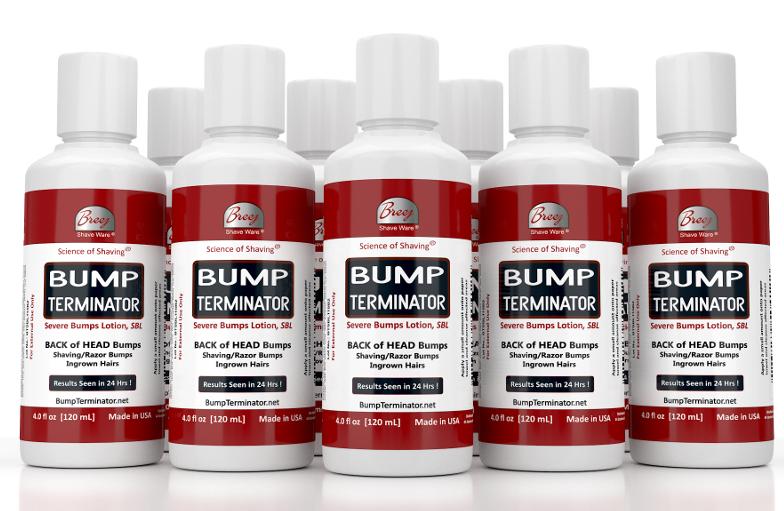 Bump Terminator 4 oz