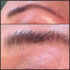 Eyebrow hair growth before and after using Eyebrow Gain.