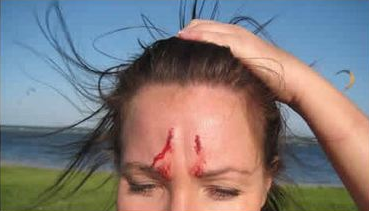 kite-accident-head-accident.png