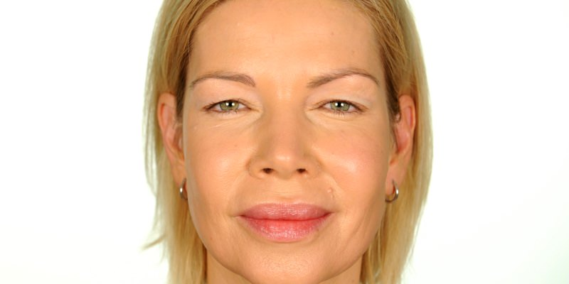 Shop Non Surgical Anti Aging Beauty Products Contours Rx