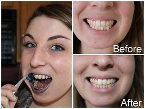 teeth6.jpg