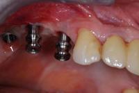 dentaladvantages.jpg