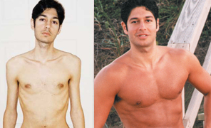 The Story of Jordan Rubins Crohns Disease