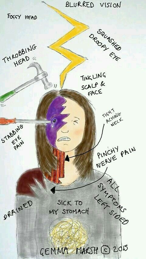 Migraine Meme, Gemma Symptoms
