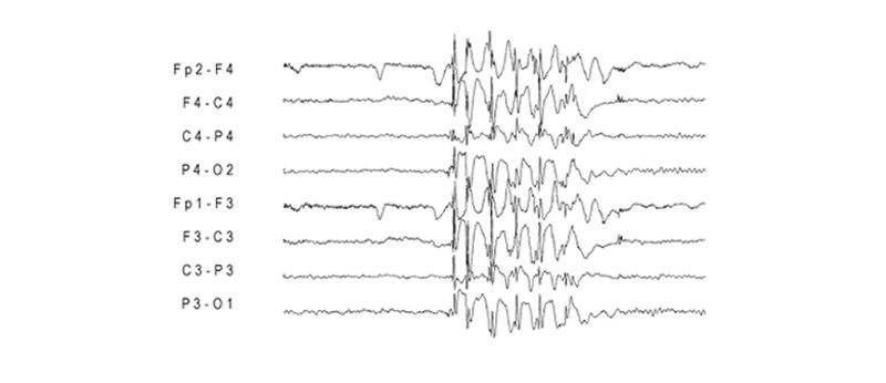 photosensitive epilepsy brain activity
