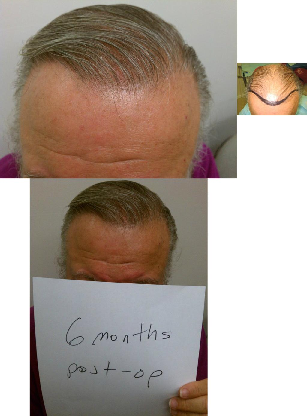 How fast does the hair grow