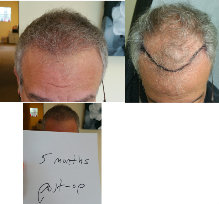 before-after-5-months-postop-afr-gray-hair.jpg