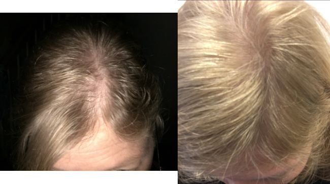 before-after-6-months-help-hair-shake-and-help-hair-vitamin-daily.jpg