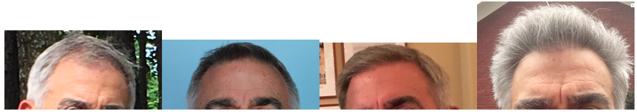 before-after-69-y-o-patient-of-dr-ed-griffin.png