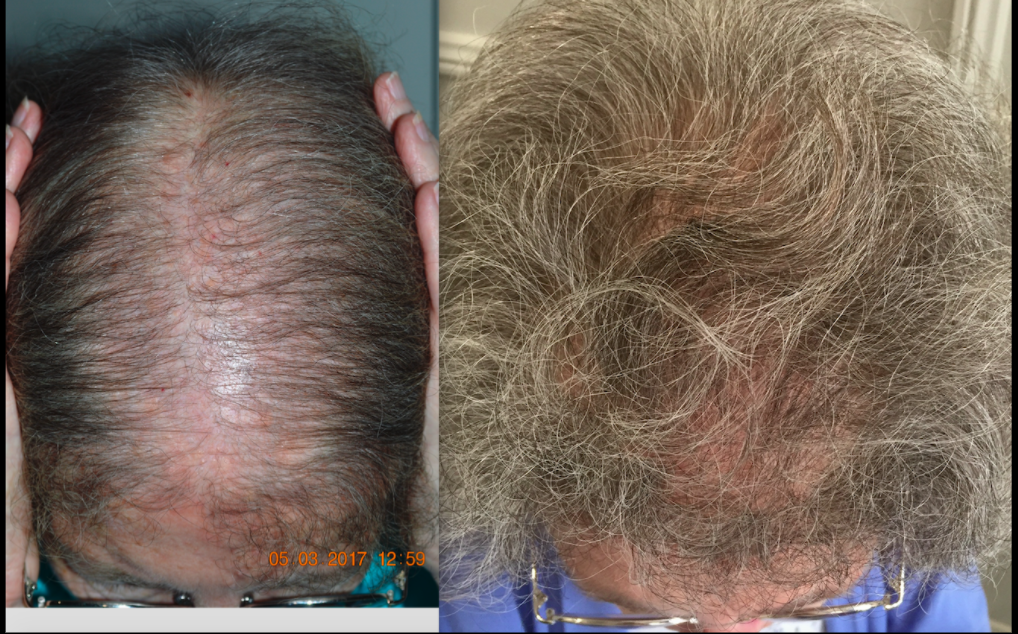 before-after-pt-of-dr-jen-martinick-help-hair-shale-7-months.png