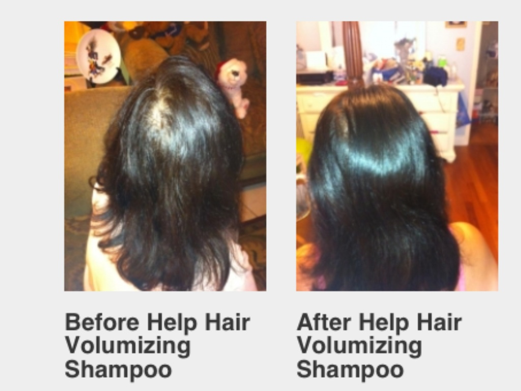biotin shampoo before and after