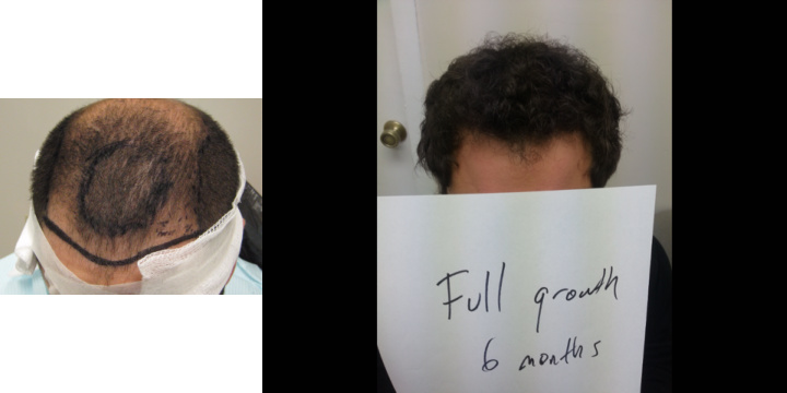 Faster regrowth after a hair transplant. Hair vitamins for fast hair growth. Accelerated Follicular Restoration. How to make hair grow faster.