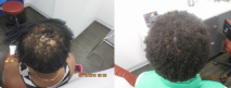 bef-after-african-american hair loss-with-help-hair-shake.jpg
