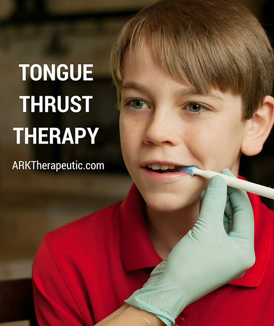 tongue thrust therapy