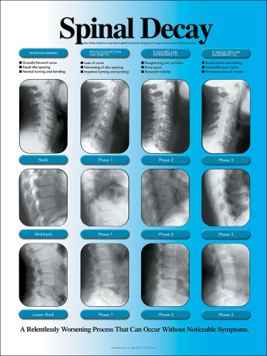 Subluxation Degeneration Poster Spinal Decay X Ray Chart