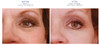 iS Clinical Youth Eye Complex