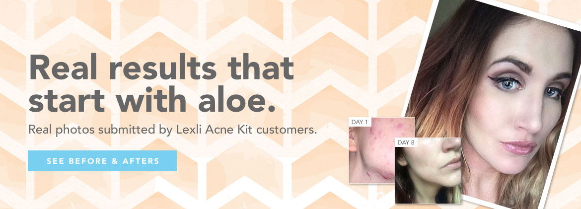 See Lexli Acne KIt Before and Afters from real customers