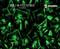 Battle Sword Knights Skulls Shield Battles Medieval Times Hydrographics Film Black Clear Pattern Big Brain Graphics Neon Green Base