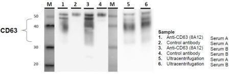 exosomecd63.jpg
