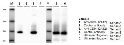 exosomecd9.jpg